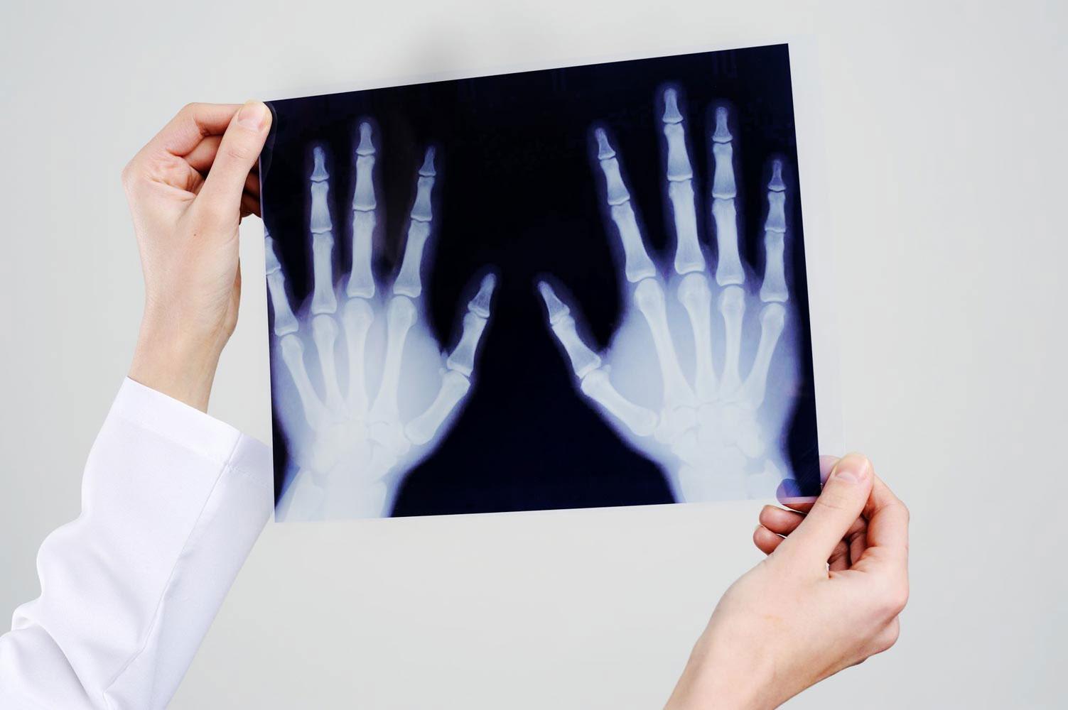 Handchirurgie - Titelbild